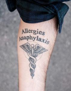 """Matt got a """"medical alert"""" tattoo after his reaction and ambulance incident."""