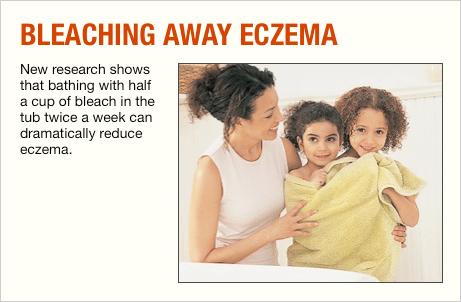 Bleach Baths for Eczema Treatment Prove Effective - Allergic