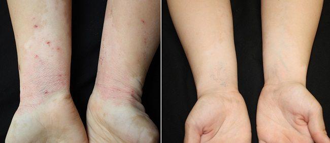 EczemaBeforeAfterWEB