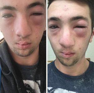 Andrew Seely, hazing incident